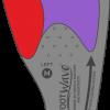 FootWave HALLUX